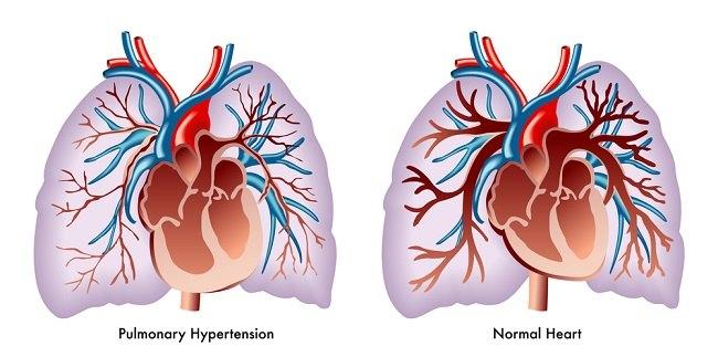 Mengenal Hipertensi Paru pada Penyakit Jantung Bawaan