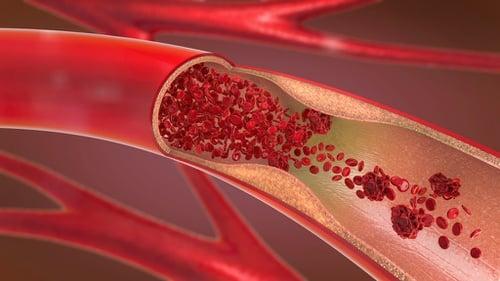 Mengenal Pembuluh Darah Dalam Tubuh Manusia