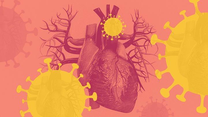 Kaitan antara Covid 19 dan Penyakit Kardiovaskular